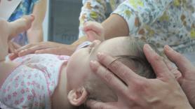 O uso da Terapia Manual no tratamento da Plagiocefalia (Osteopatia Pediátrica) | por Sofia Milhano