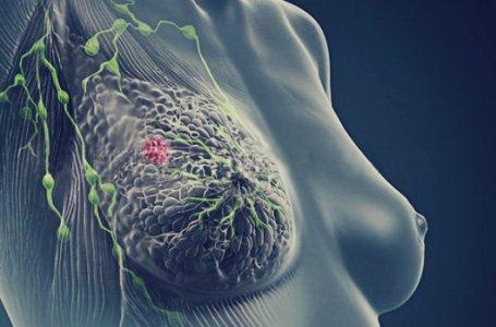 Teste ao sangue antecipa em a deteção de metástases do cancro da mama