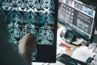Quadro Referencial Teórico do Raciocínio Clínico em Fisioterapia Neurológica – NeuroQR | Por Hugo Santos (Bwizer Magazine)