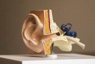 Reabilitação Vestibular na Hipofunção Vestibular Periférica: diretrizes para uma prática clínica baseada na evidência