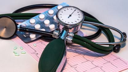 Arritmias cardíacas no ECG: Alterações no débito cardíaco e problemas tromboembólicos