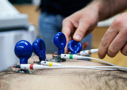 Fibrilhação auricular assintomática: Quando e como intervir?
