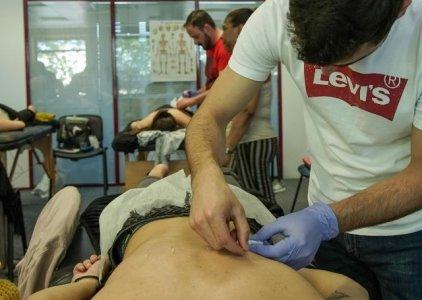 Protocolo de Acupuntura na Dor Lombar