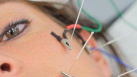 Mecanismos de Eletroacupuntura (Eletropuntura) na dor persistente