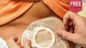 Estomaterapia: Quais os vários tipos de ostomias?