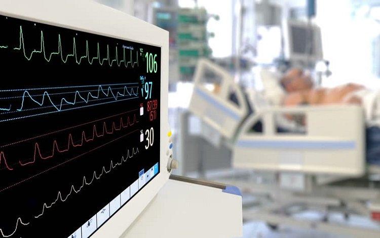Fibrilhação auricular no ECG?