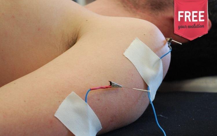 Eletropuntura no tratamento da tendinopatia com calcificação: reflexão sobre um estudo piloto