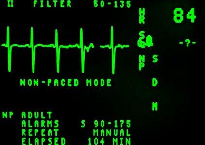 Fibrilhação auricular no ECG? (Vídeo com o Enf. Filipe Franco)