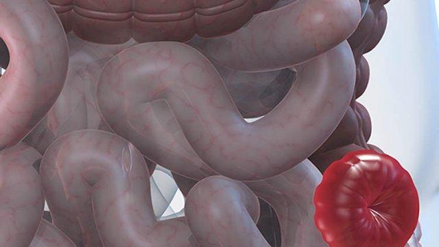 Ostomias e Estomaterapia