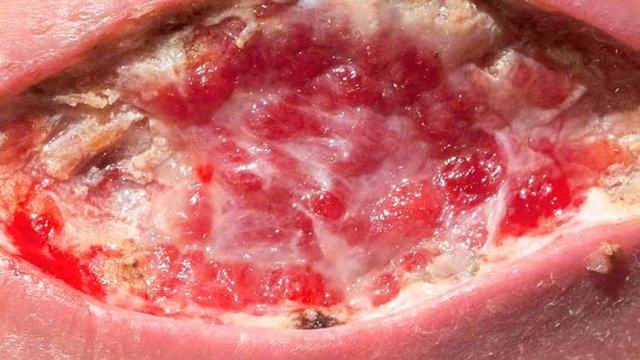 curso úlcera por pressão