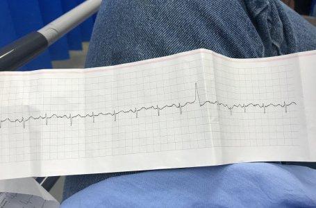 Como identificar uma coronariopatia no ECG? Download de algoritmo
