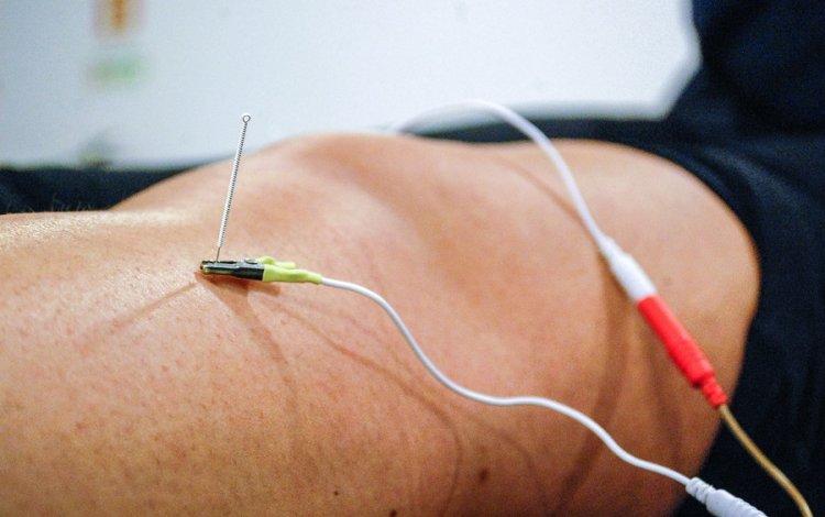Como tratar uma disfunção do joelho com eletropuntura? Tutorial com Susana Dinis