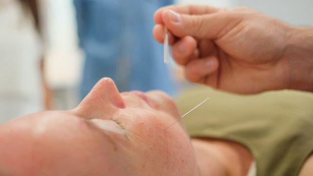 formação Acupuntura para fisioterapeutas
