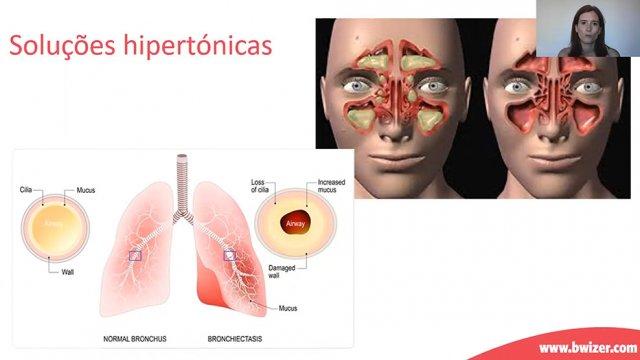 Curso Online: Doença Respiratória e Terapêutica Inalatória