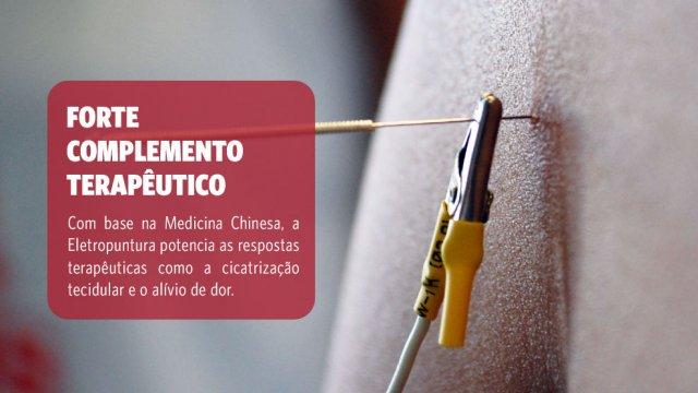 Eletropuntura
