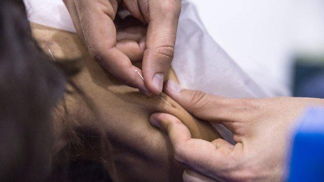 Acupuntura para Enfermeiros Integração nos Cuidados ao Doente