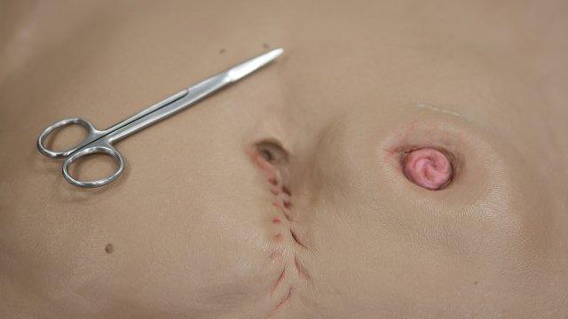 Estomaterapia para Enfermeiros - cuidados essenciais em Ostomias